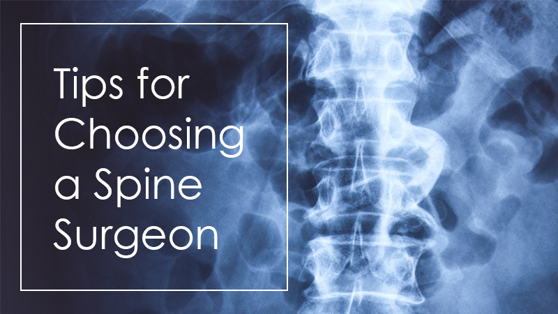 Tips for Choosing a Spine Surgeon