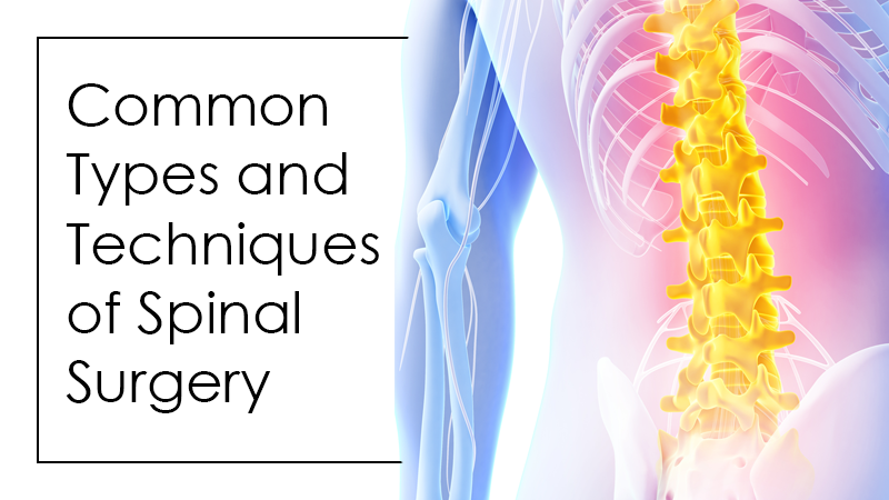 Common Types and Techniques of Spinal Surgery