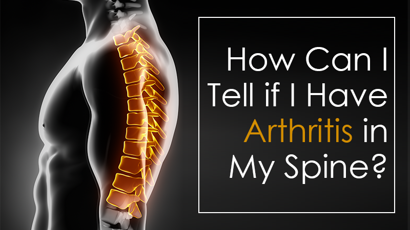 How Can I Tell if I Have Arthritis in My Spine?