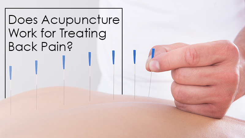 Does Acupuncture Work for Treating Back Pain?